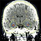 Strategies to mitigate the effects of whole-brain radiation therapy on neurocognitive function in patients with brain metastases