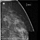 Breast MRI and its impact on partial breast irradiation