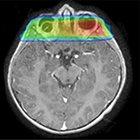 Proton therapy for radiation-induced parameningeal rhabdomyosarcoma