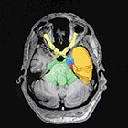 Linac-based stereotactic radiosurgery for trigeminal neuralgia