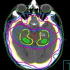 A treatment planning class solution for hipppocampal avoidance whole brain irradiation using volumetric-modulated arc radiothera