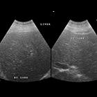 Radiological Case: Hepatic infarction