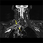 MRI of the brachial plexus: A practical review