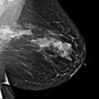 Sclerosing adenosis mimicking malignant lesion on breast MRI