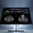 "PART 2, RSNA 2015 review: ""Innovation"" as expressed through technology"