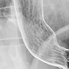 A clinical/pattern approach for barium esophagography