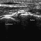 Diagnostic ultrasound of the elbow