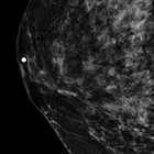 Invasive breast cancer: Digital breast tomosynthesis versus full-field digital mammography