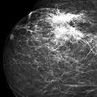 Benign breast lesions that mimic cancer: Determining radiologic-pathologic concordance