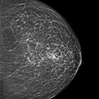 Breast amyloidosis detected with 3D mammography