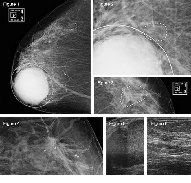 Bilateral Ultrasound After Mammogram