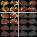 /uploadedImages/News/Ultrasound/AD PET beta amyloid brain.jpg