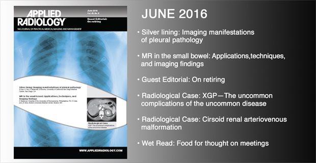 slider-June2016