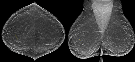 digital breast tomosynthesis observer performance study