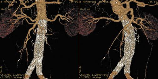 Thoracic Aorta CTA