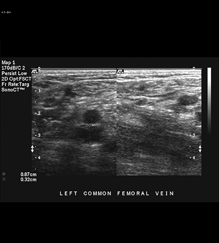 imaging of deep venous thrombosis: a multimodality overview, Cephalic Vein