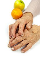 Arthritis: The Number-One Cause of Disability in America