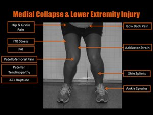 medial knee collapse