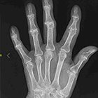 JAOCR at the Viewbox: Erosive Osteoarthritis