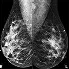 Unilateral Axillary Lymphadenopathy