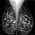 At the Viewbox: Metaplastic Breast Carcinoma