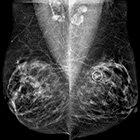 Metastatic Invasive Breast Carcinoma