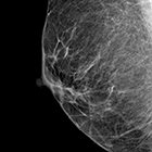 Breast Density as an Independent Risk Factor for Cancer