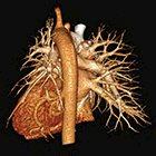 Pulmonary Vascular Anomaly