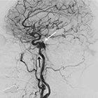 At the Viewbox: Bilateral Indirect Carotid-Cavernous Fistulas