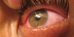 eye, eye health, cornea