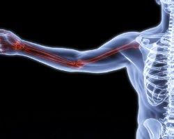 bone up on bone health osteoporosis healthy bones calcium supplement