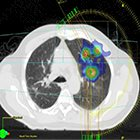 Technology Trends: Breathing easier with SBRT, VMAT, 4D MRI and other advances in lung cancer treatment