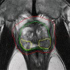 SBRT With Integrated Boost to the Dominant Intraprostatic Nodule: Initial Dosimetric and Clinical Outcomes