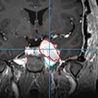 A Just Enough Interaction Segmentation Tool Improves Consistency and Efficiency for Radiation Therapy Contouring of Meningiomas