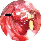 Neoadjuvant chemoradiotherapy for laryngeal synovial sarcoma