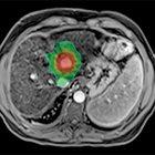 Liver cancer turf wars