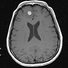 Wanted: Dead or alive? Distinguishing radiation necrosis from tumor progression after stereotactic radiosurgery