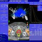 SRS, SBRT deliver promising results