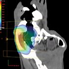 FLASH Stance — Updates in Ultrahigh Dose Rate Radiation Therapy