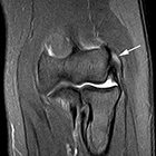 Imaging sports-related elbow injuries