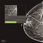 The Power of Triage (CADt) in Breast Imaging