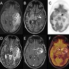 Simultaneous PET-MRI acquisition: Clinical potential in anatomically focused and whole-body examinations