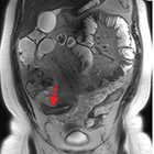 Magnetic resonance enterography in inflammatory bowel disease