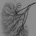 Angiomyolipoma in Tuberous Sclerosis