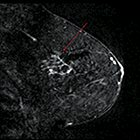 Problem Solving with Breast MRI