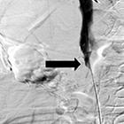 Leiomyosarcoma of the Inferior Vena Cava