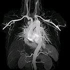 Ingenia Ambition MRI: Pioneering Cardiovascular Imaging