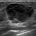 Primary Breast Lymphoma