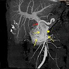 Radiological Case: Arteriovenous malformation of the pancreas