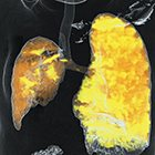 Computed Tomography: Spinning a Revolution in Pediatric Imaging